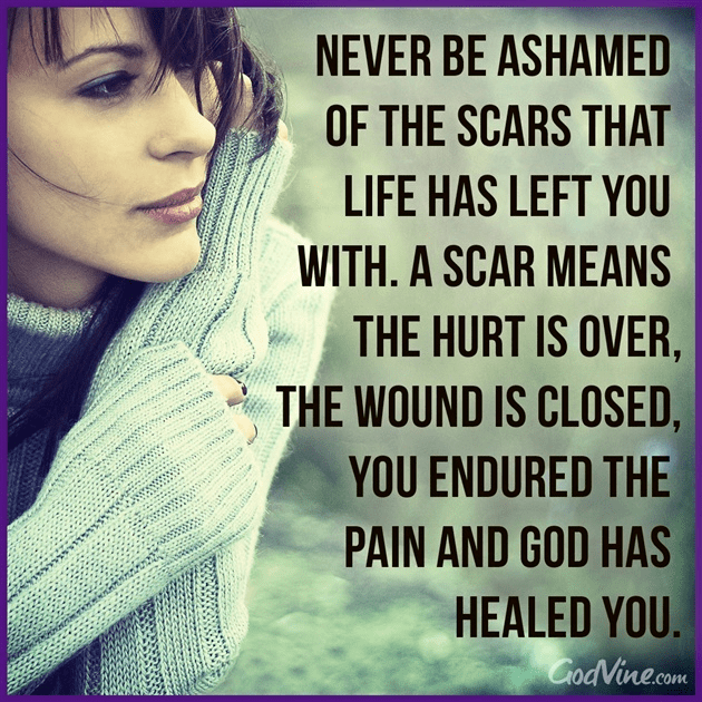 Never Be Ashamed of the Scars Life Has Left You