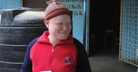Illegal Trade in Body Parts Threatens Africans with Albinism
