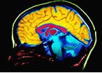 How We Teach Changes Brain Size