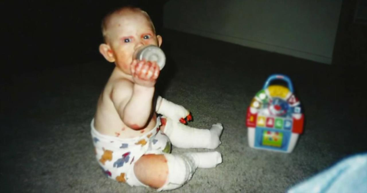 Butterfly Child Suffers Extreme Pain Due To Rare Skin Condition