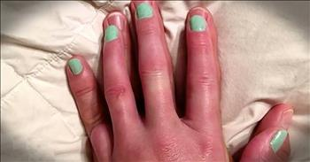 Husband Lets Wife Paint His Pinky Finger For Good Reason